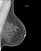 2010_L_MLO_Mammogram_E38_Original